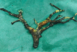 NEJM:胆管铸型综合征-病例报道