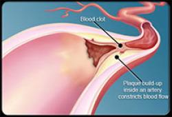 Stroke:大血管闭塞性脑梗死超急性期梗死体积急骤变化的指标有哪些?