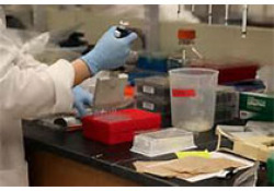 "NEJM:Cabotegrator-rilpivirine注射方案用于<font color=""red"">HIV</font>感染"